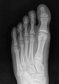 All About X-Rays