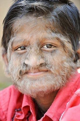 Hypertrichosis - Pictures, Symptoms, Causes and Treatment